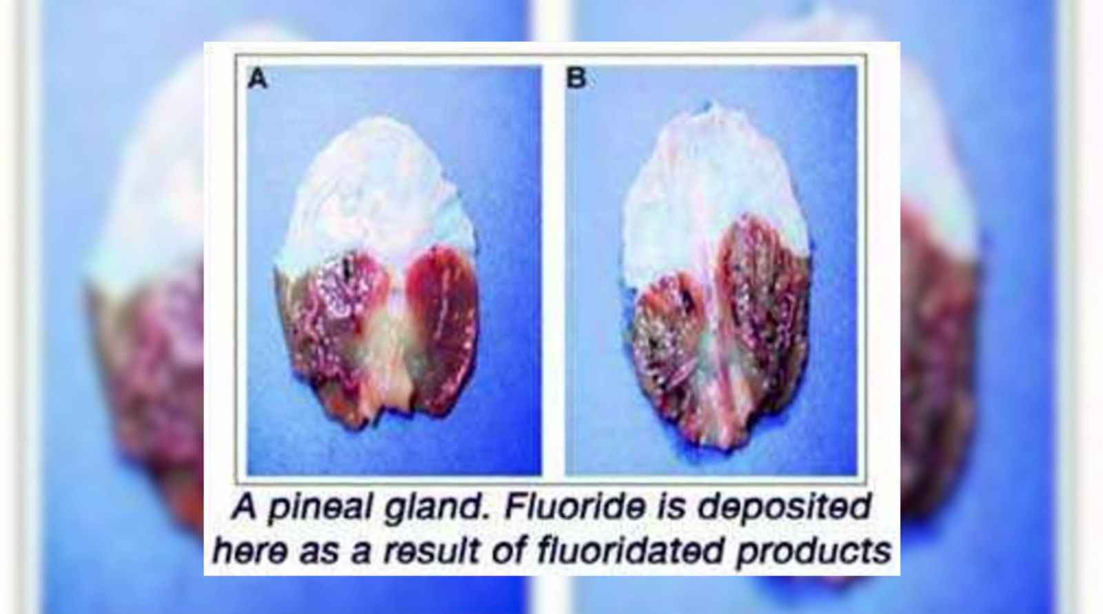 https://de.spherebeingalliance.com/media/img/1600x0/2017-01/5_calcified_pineal_gland.jpg